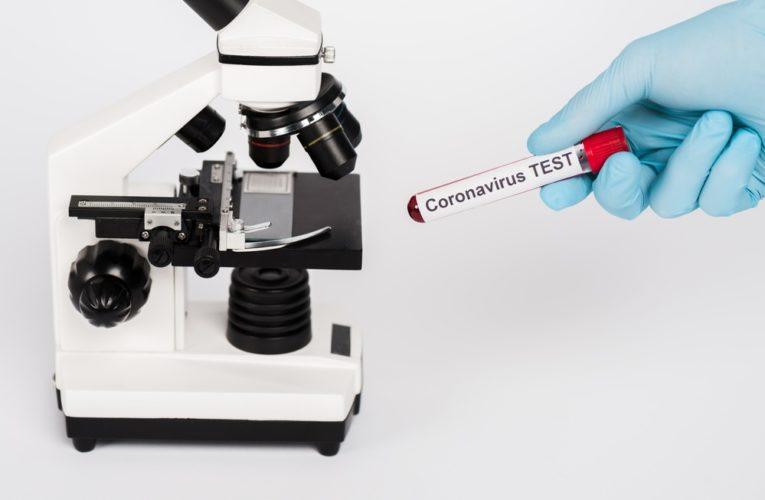 В области зарегистрировано 113 новых случаев заболевания COVID-19